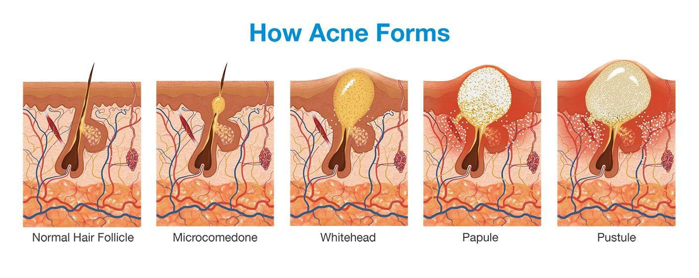 Acne Forming Diagram