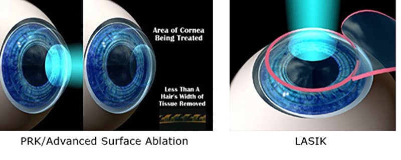 Advanced Surface Ablation