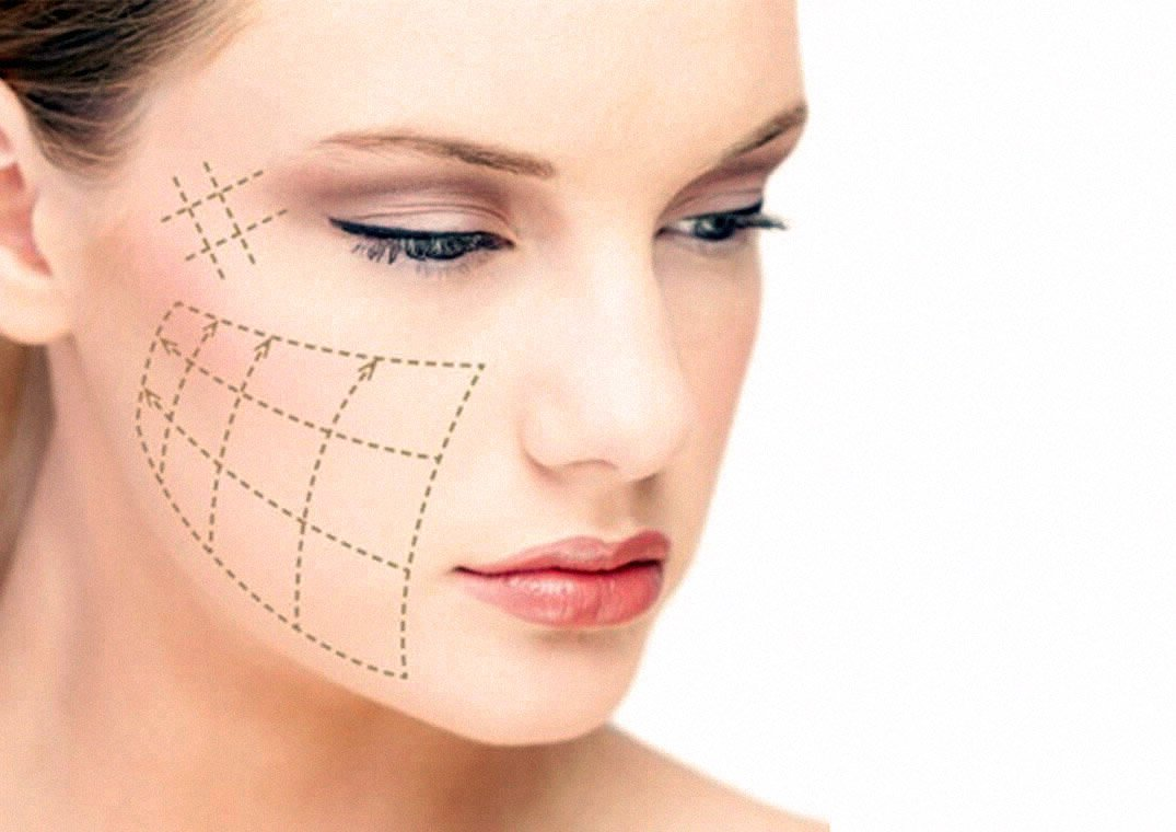 ThreadLift Diagram on a Woman