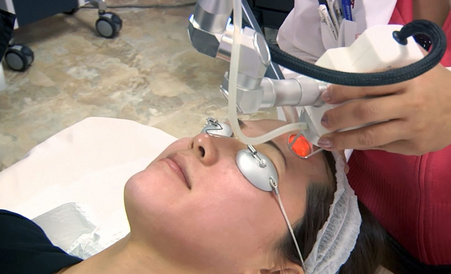 Woman undergoing Fractional Co2 Laser treatment