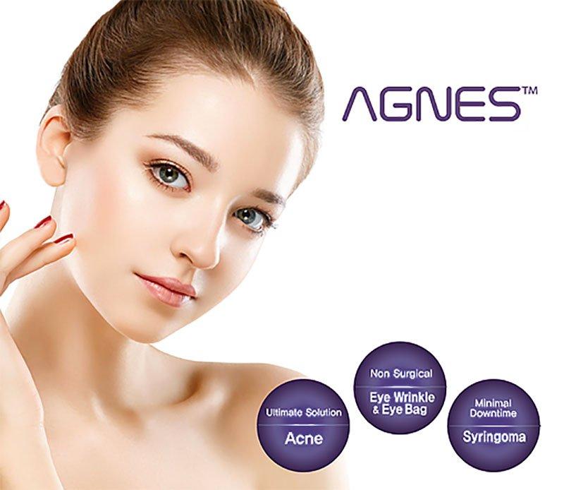 agnes acne treatment