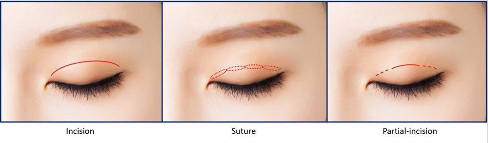 Types of double eyelid surgery