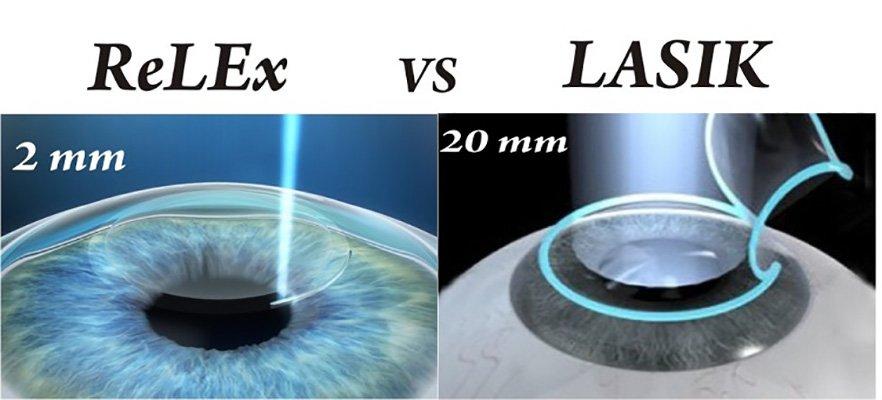 relex vs lasik