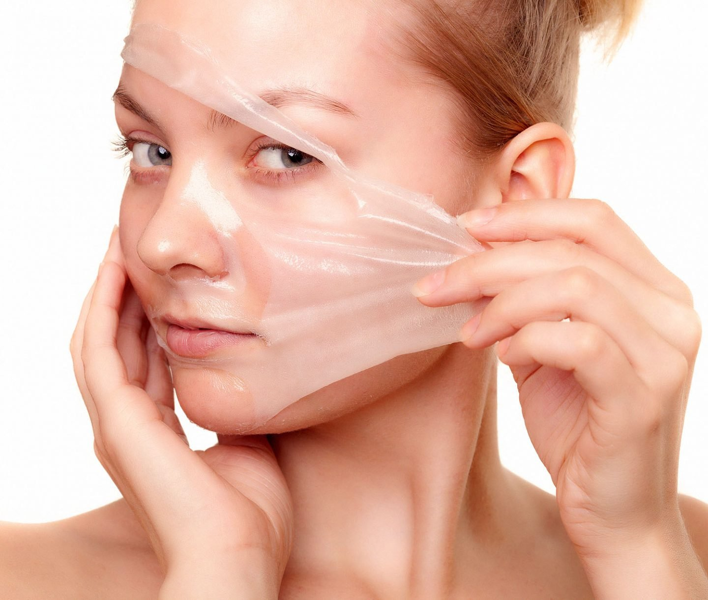 woman in chemical peel