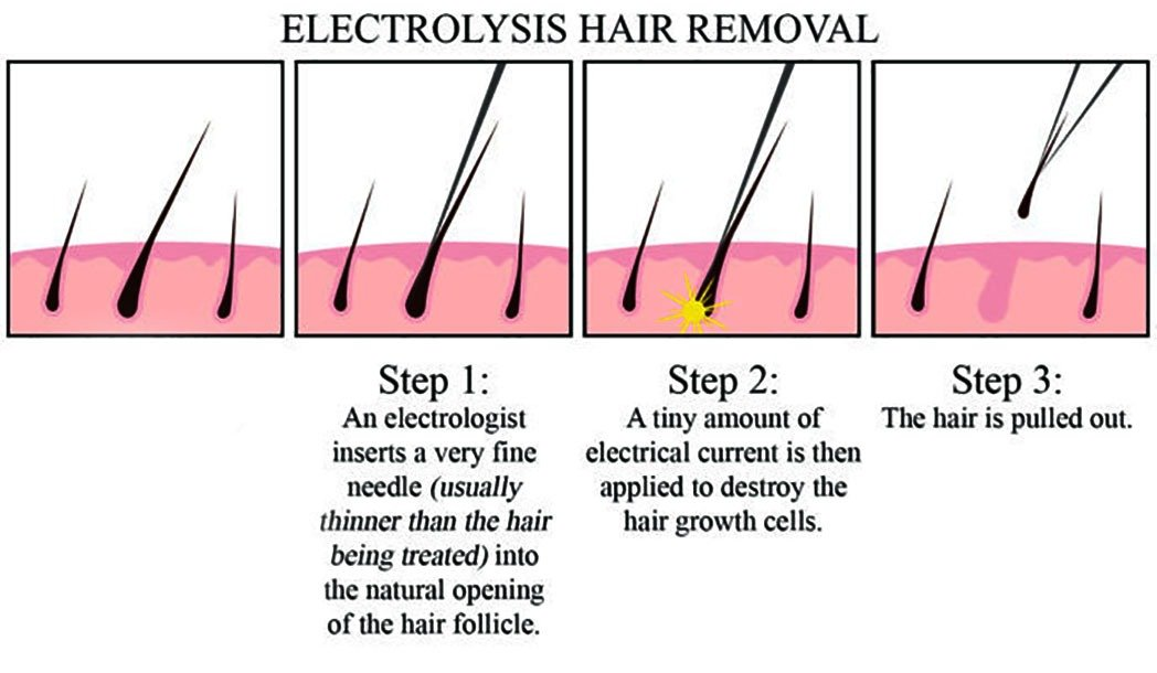 Diagram Aesthetic Doctor Discusses Best Permanent Hair Removal