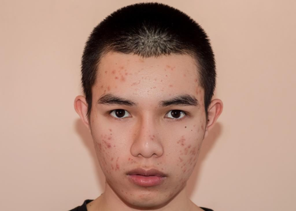 Acne Scars asian boy