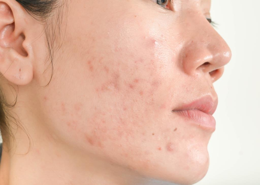 Acne Scars asian girl