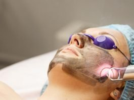 Acne Scars laser treatment during the procedure