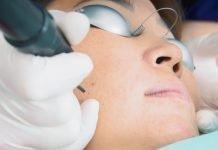 Fractional Laser Treatments procedure