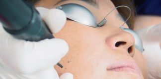 Fractional Laser Treatments procedure