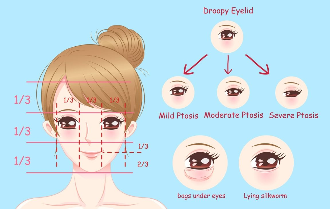 Ptosis different stages