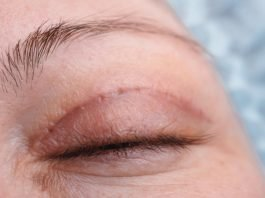 Ptosis stitches