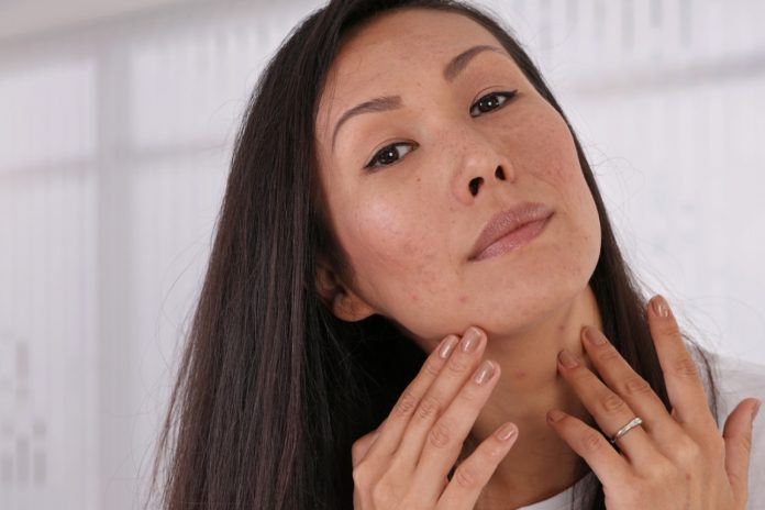 asian girl with acne scars