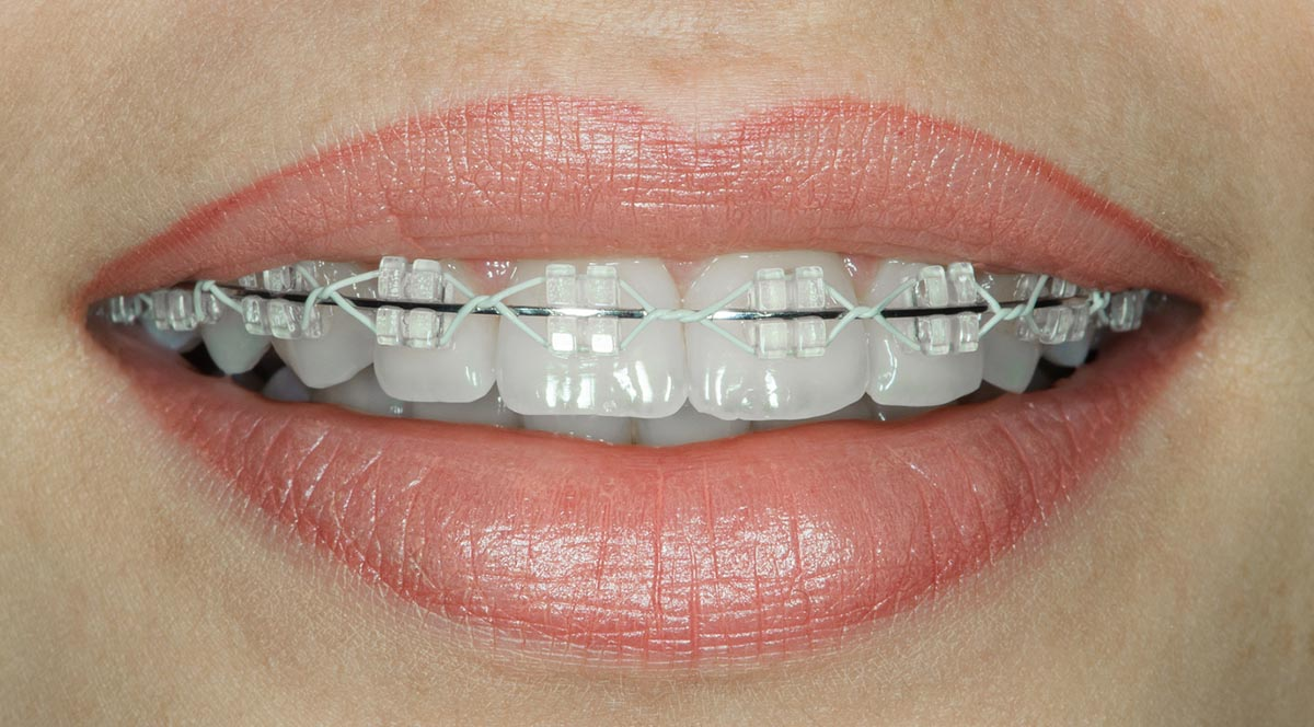teeth with ceramic braces