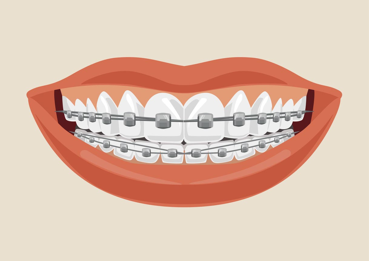 dental braces illustration