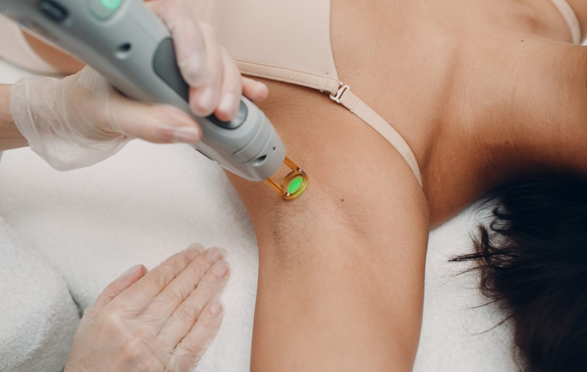 laser treatment hair removing