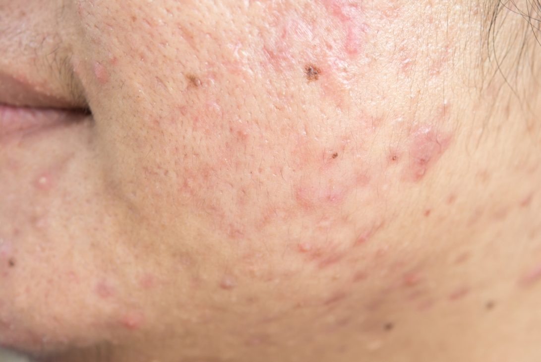skin with different acne scars