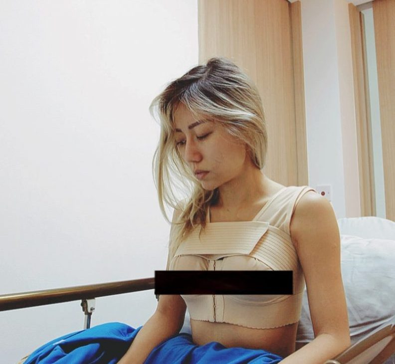 A Stabilising Bra is used on Yuna after her breast implants surgery.