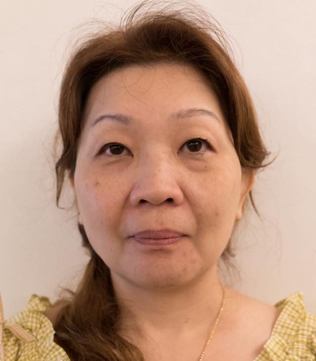 A photo of Joanna's mom prior the facial thread lift.