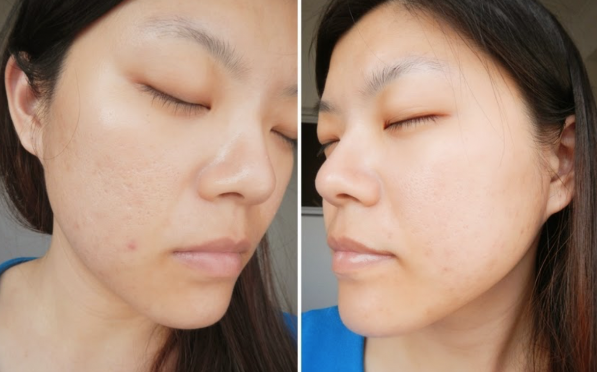 Although the acne scars are still prominent, Yvonne's skin looks radiant a month after the treatment