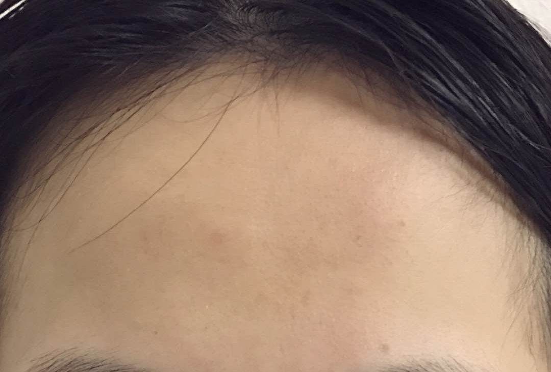 Amazing results! You can't even tell a mole was once on the forehead of Poopiemookie!