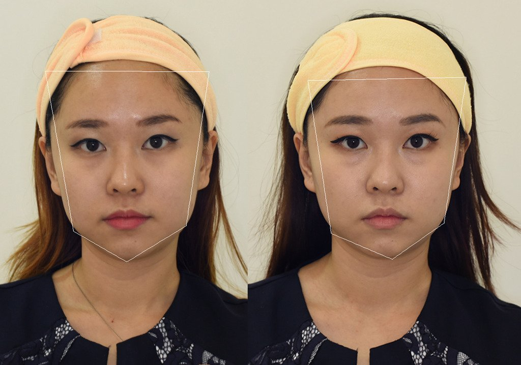 Celine confides that Ultherapy delivered its promise of tighter skin but was less obvious on her as she gained weight 3 months after her treatment (left photo).
