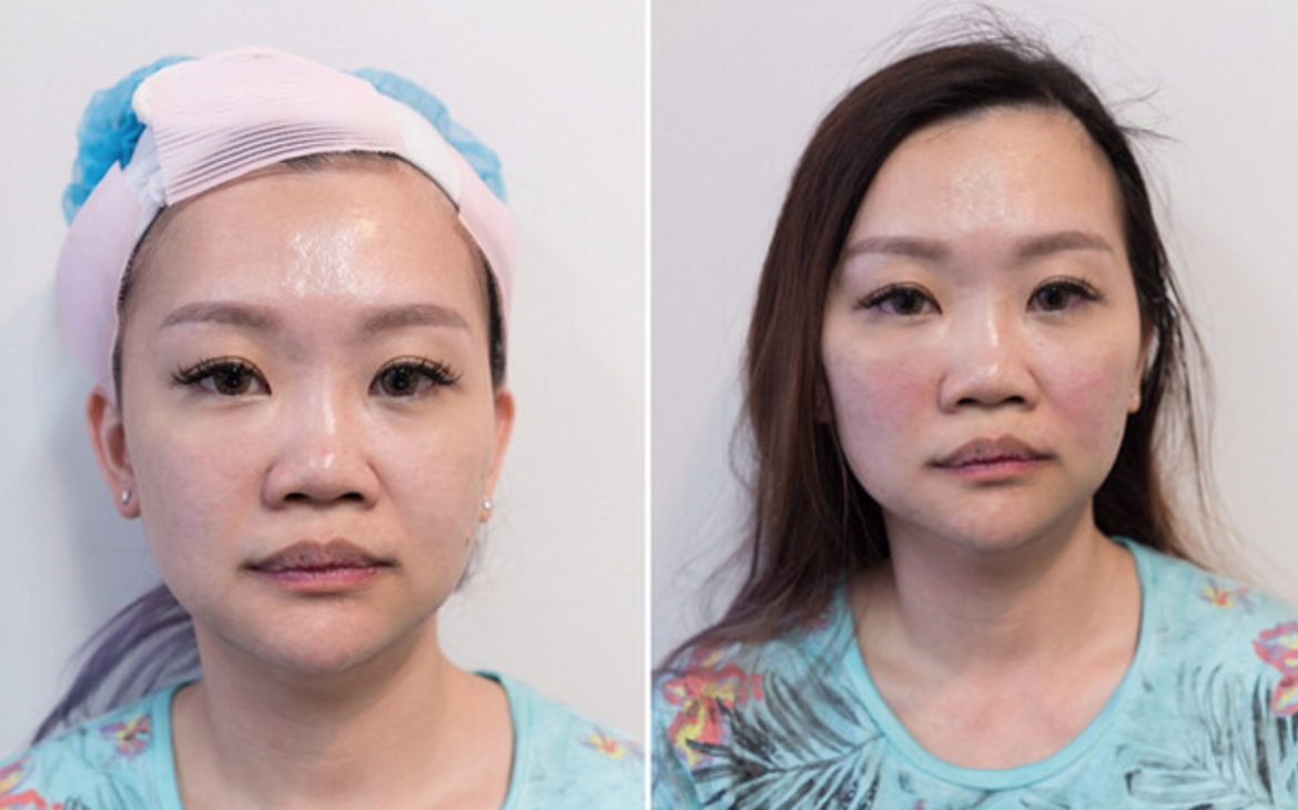 Charlene's jawline is more defined and cheeks appear firmer in the left photo after completion of the procedure.