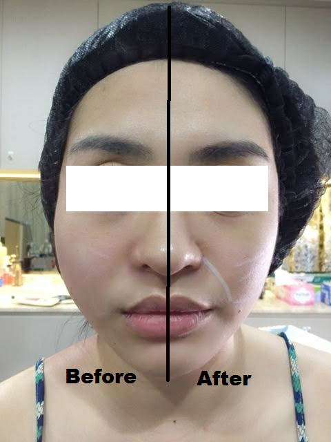 Charlotte Ashlene's right cheeks show the procedure's immediate lifting result.