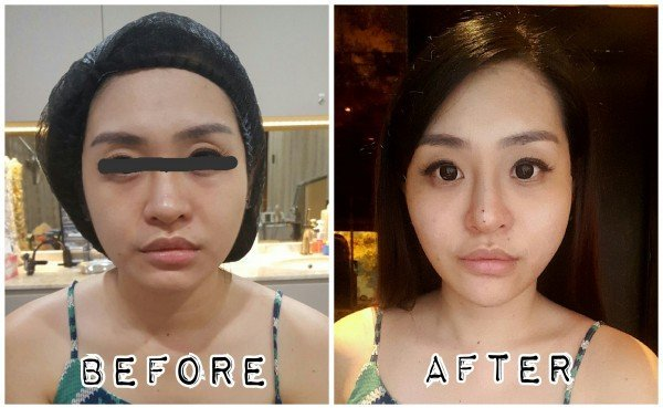 From a full and rounder face, the facial thread lift's results made Charlotte Ashlene's face is much more defined.