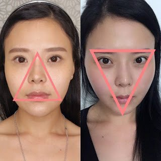 From triangle to an inverted triangle. Michelle's facial thread lift successfully achieved her face's V-shape!