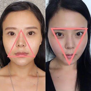 Singapore Blog Reviews on Facial Thread Lifts - UbiqiHealth