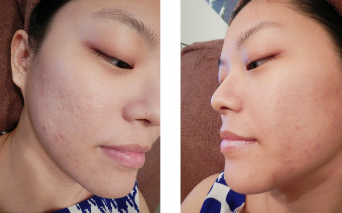 In the hopes of banishing her acne scars, Yvonne turns to the Ematrix Treatment.