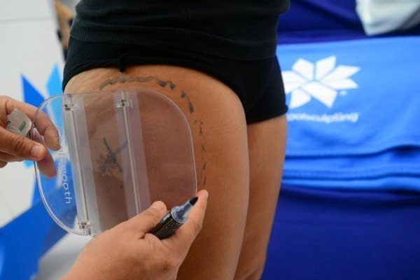 Markings are done to ensure precision during the placement of the CoolSculpting device.