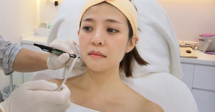 Markings on the face are necessary to guide the doctor during the thread insertion.