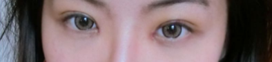 My Double Eyelid Journey recovery