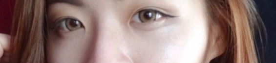 My Double Eyelid Journey results