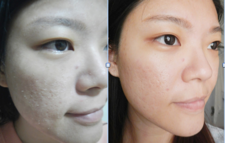 No drastic improvements on Yvonne's acne scars can be noted after the first treatment.