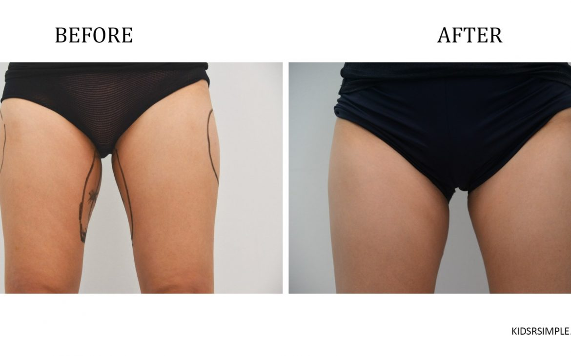 No more side bulges! Christy's thighs look slimmer after CoolSculpting.