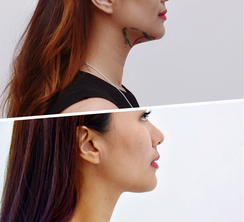 Notice that the remarkable change in the second photo as the once sagging fats under Ju Ann's chin is gone.