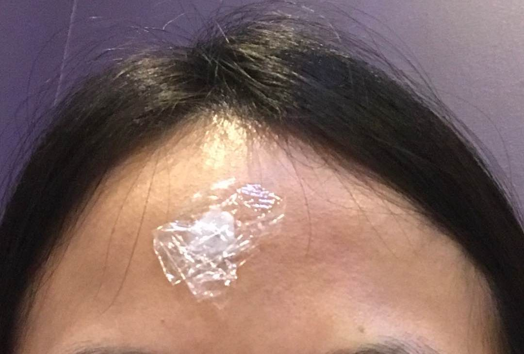 Numbing cream plus cling film helps eradicate the pain during the mole removal procedure.