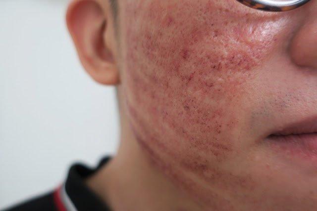 On closer look, Sim Alvin's skin looked burnt.