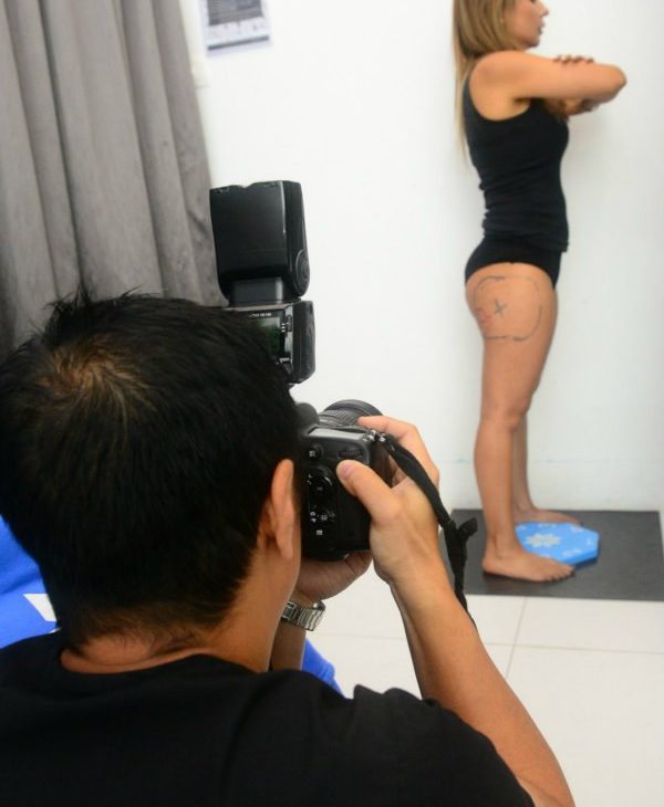 Photographs are taken for before and after comparison of the areas treated.