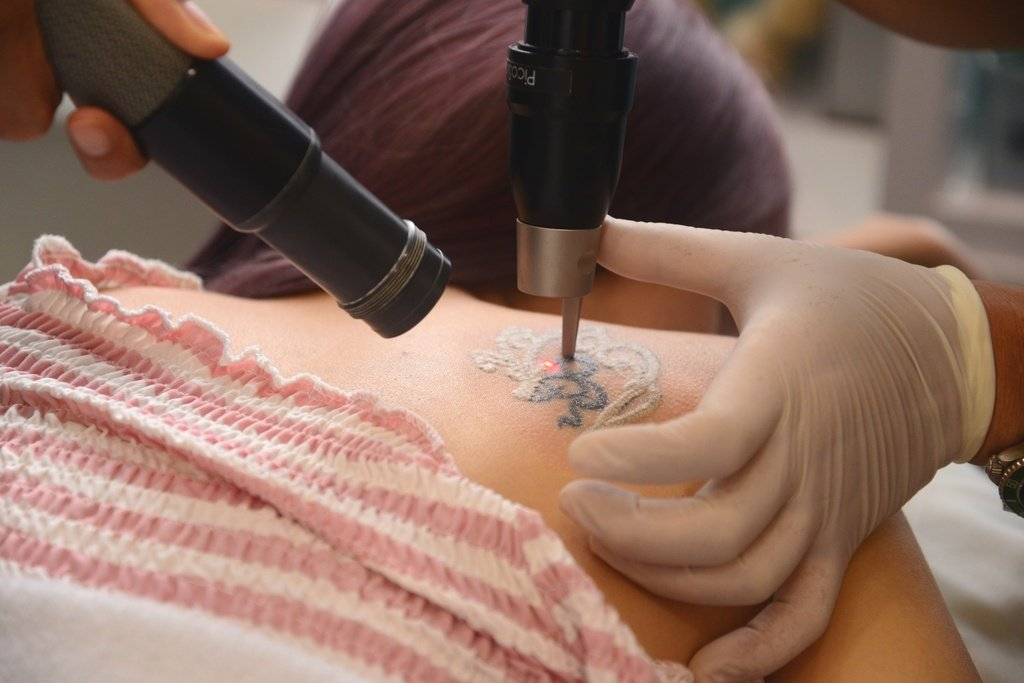 PicoSure laser goes through Xinyi's tattoo.