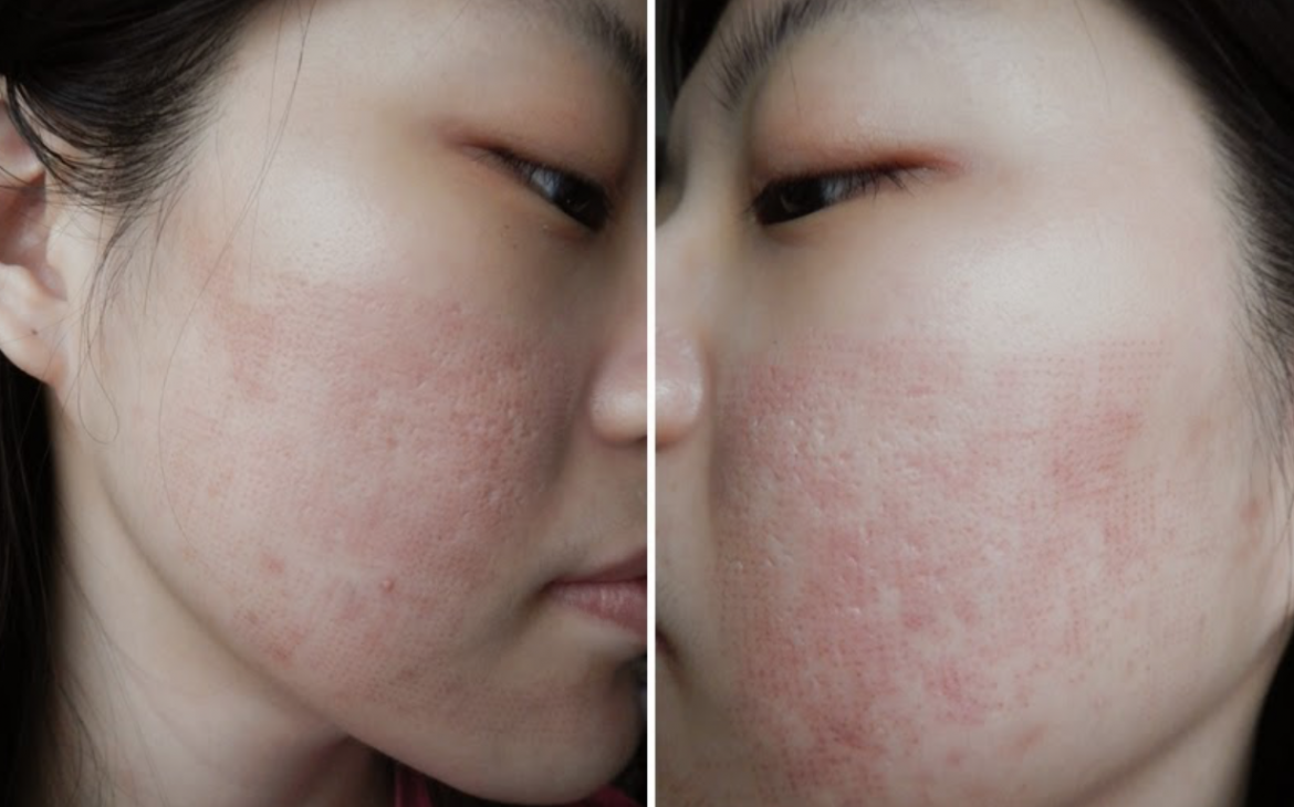 A List of Acne Scar Treatments as Reviewed by Singapore