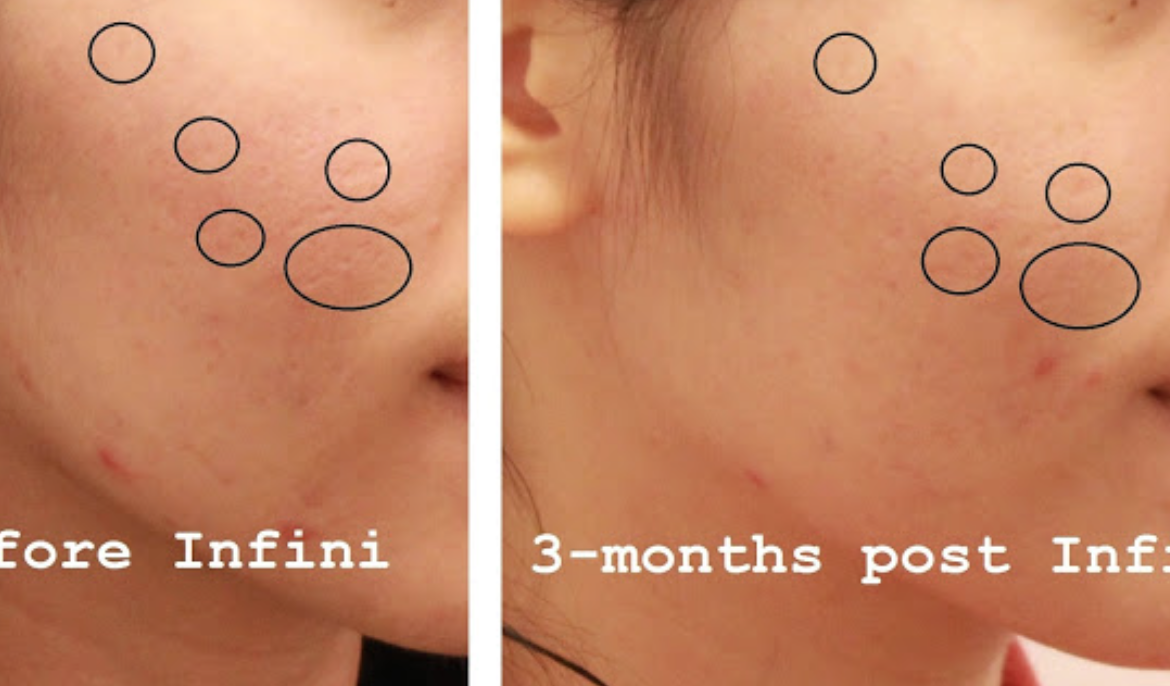 Scars have definitely improved 3 months after Cindy's Infini treatment.