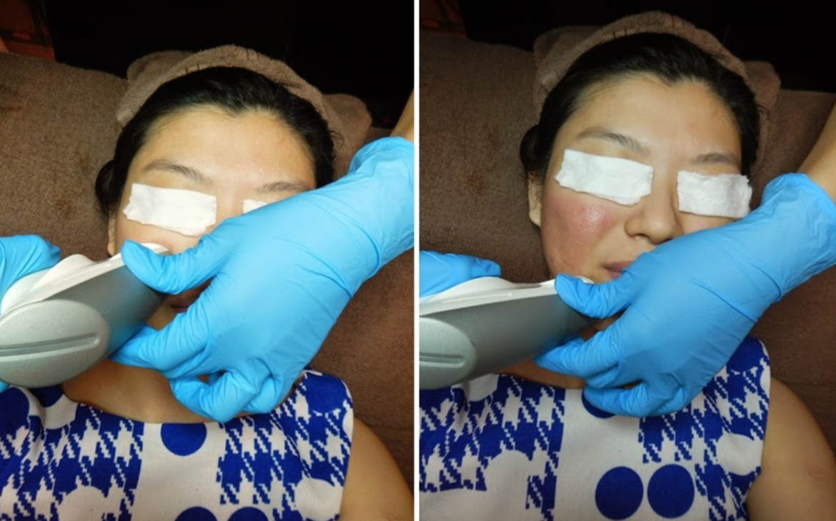 Skin discoloration appears as soon as the machine passes through the target areas