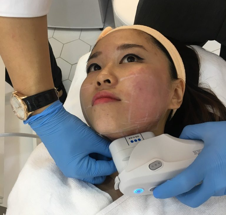 The Ultherapy device injects heat deep into the skin to stimulate collagen production.