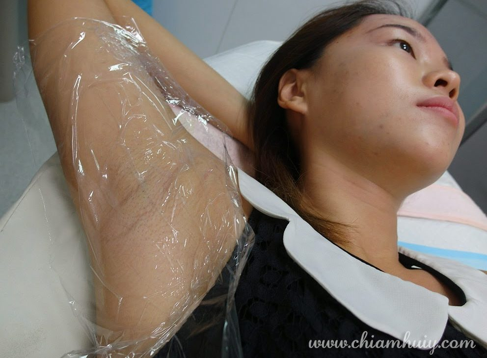 The armpit skin is highly sensitive, hence the need for numbing cream to prevent any discomfort