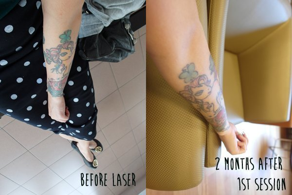The colors on Tammy's arm are a bit lighter after her first tattoo removal session.