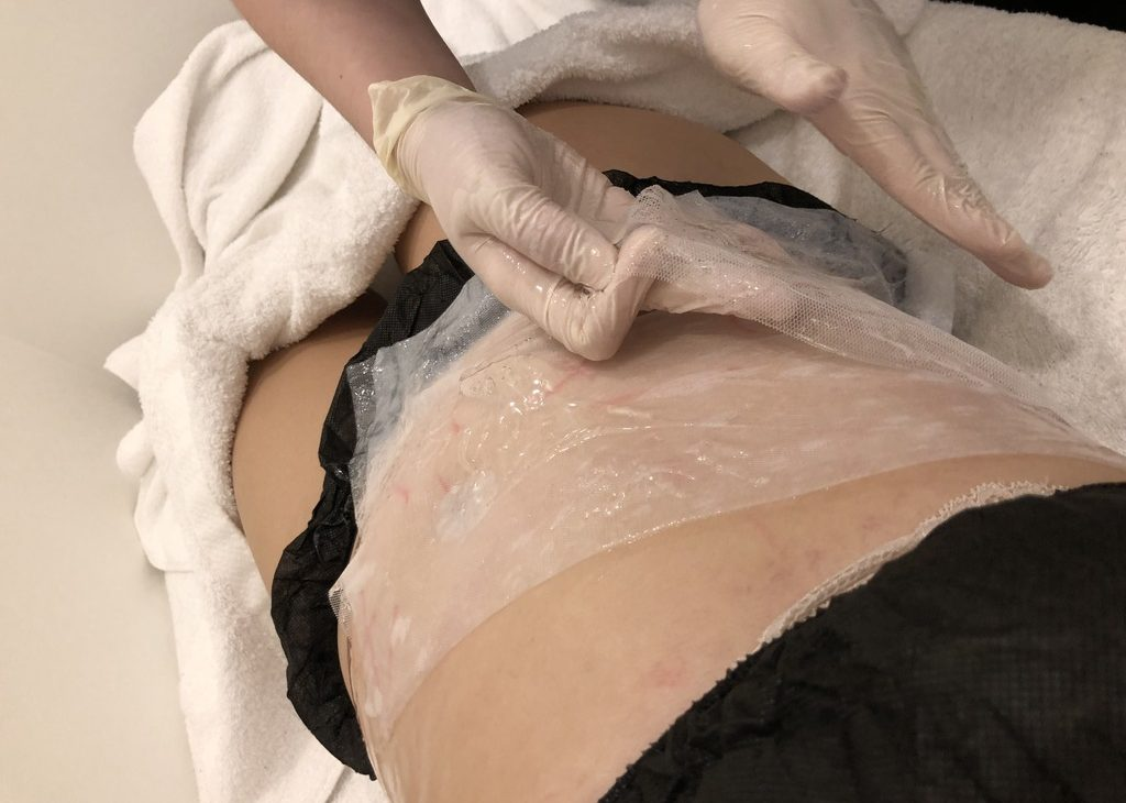 The skin is wrapped with cold gel pads to prevent it from suffering frostbite
